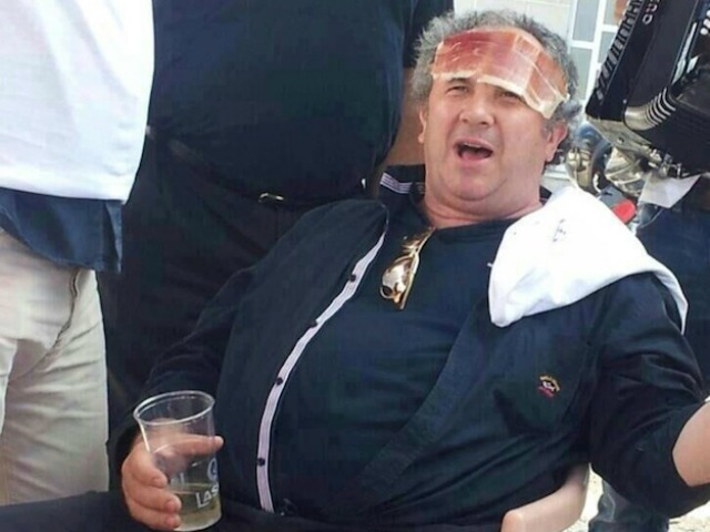 Kerum zamrznuo mandate u Vijeću i Skupštini, kaže da novi članovi nisu njegov nivo Zeljko-kerum-ham-on-forehead-photo-reader-of-24-sata-640